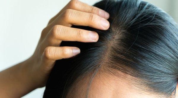 استهلاك السكر يؤدي إلى تساقط الشعر