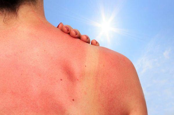 طريقة تجنب حروق الشمس
