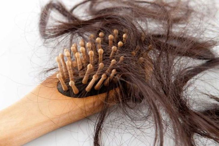 تساقط الشعر وأسبابه الطبيعية والمرضية