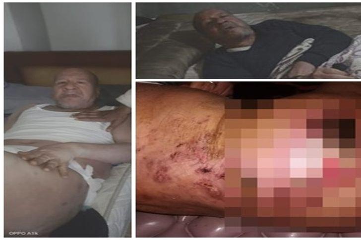 مأساة سبعيني مصاب بقرح الفراش في بني سويف