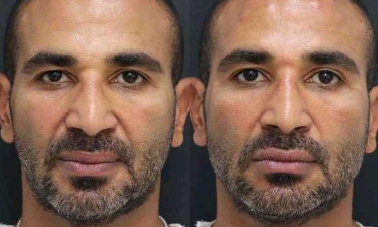 احمد سعد بعد عملية التجميل