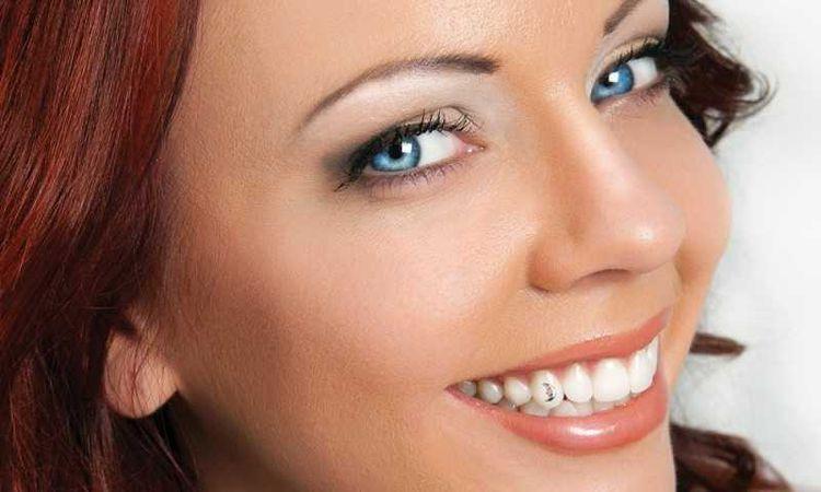 مجوهرات الأسنان